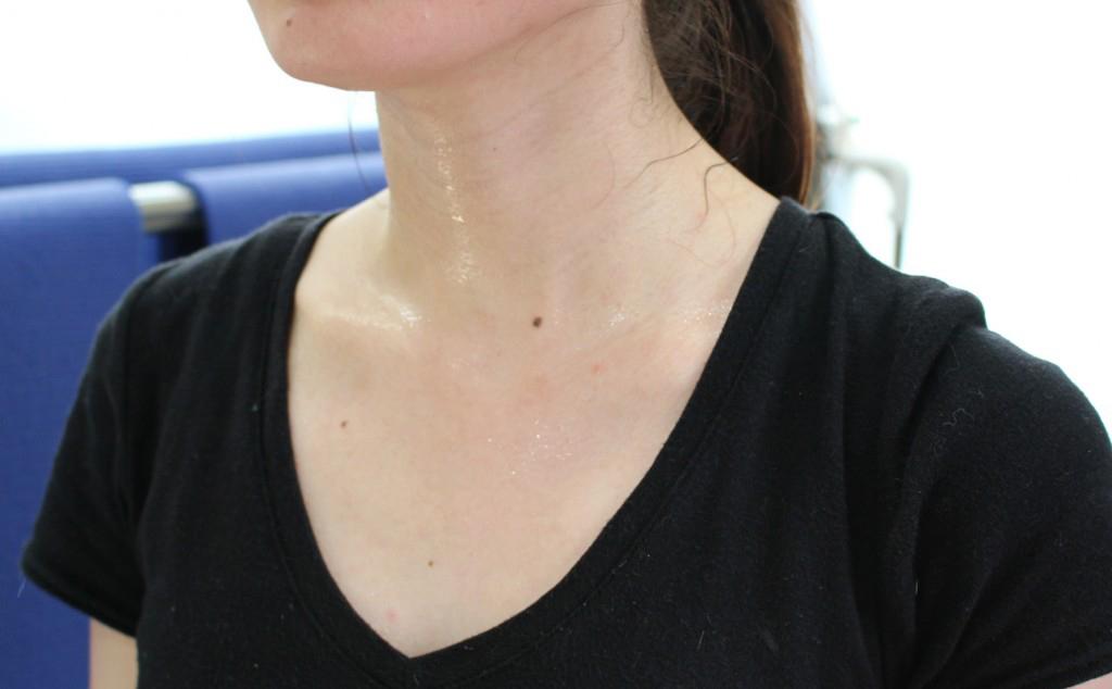 多湿がかゆみの原因